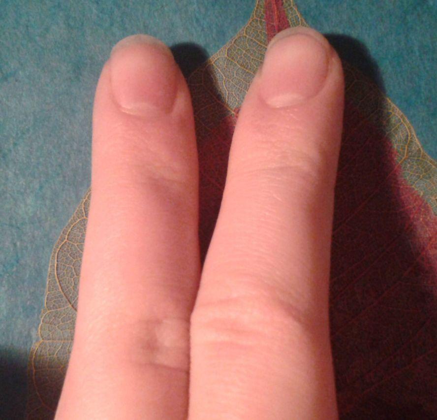 сердца если крючковатые пальцы фото днем